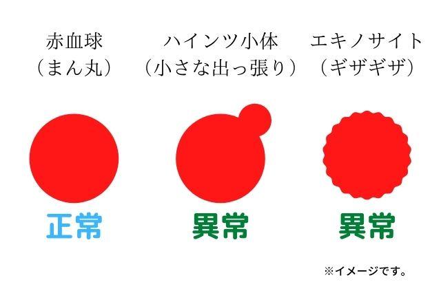 正常な赤血球と異常な形の赤血球のイラスト